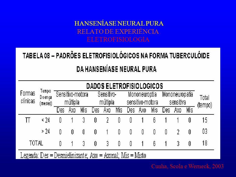 HANSENÍASE NEURAL PURA RELATO DE EXPERIÊNCIA ELETROFISIOLOGIA Cunha, Scola e Werneck, 2003