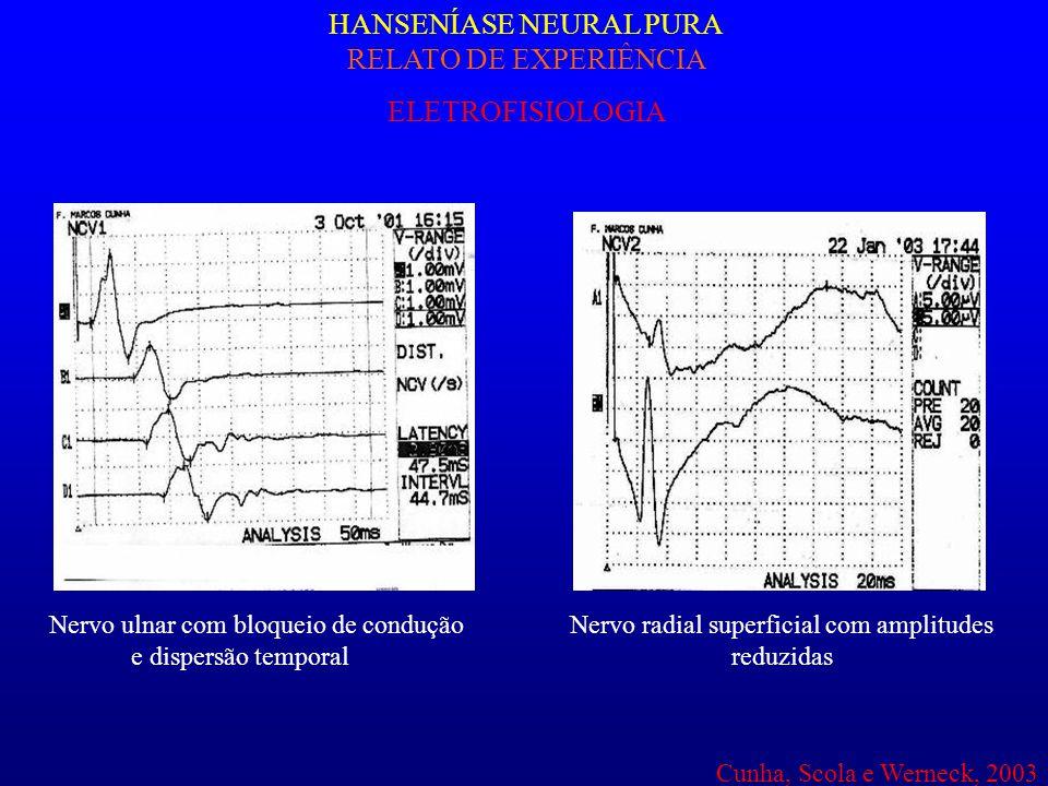 HANSENÍASE NEURAL PURA RELATO DE EXPERIÊNCIA ELETROFISIOLOGIA Nervo ulnar com bloqueio de condução e dispersão temporal Nervo radial superficial com a