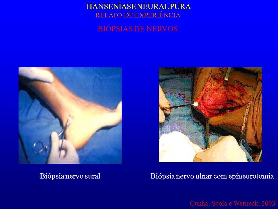 HANSENÍASE NEURAL PURA RELATO DE EXPERIÊNCIA BIÓPSIAS DE NERVOS Biópsia nervo suralBiópsia nervo ulnar com epineurotomia Cunha, Scola e Werneck, 2003