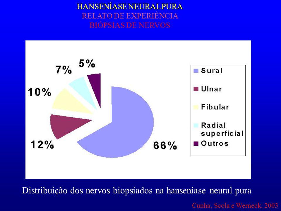 Distribuição dos nervos biopsiados na hanseníase neural pura HANSENÍASE NEURAL PURA RELATO DE EXPERIÊNCIA BIÓPSIAS DE NERVOS Cunha, Scola e Werneck, 2