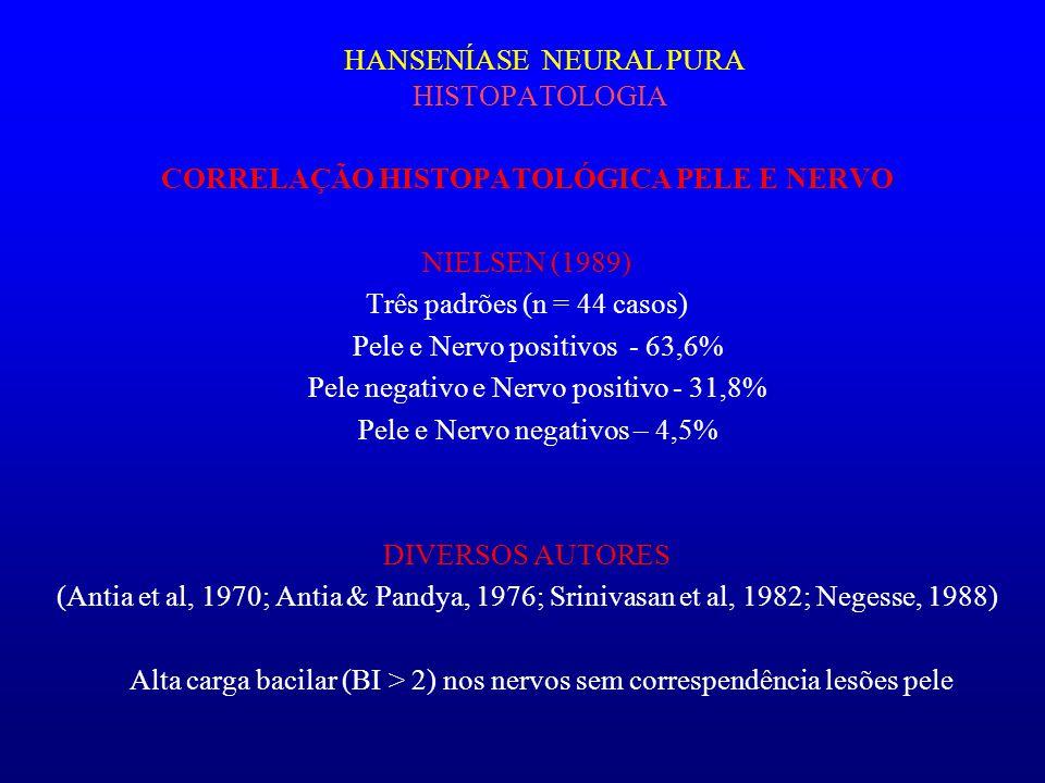 HANSENÍASE NEURAL PURA HISTOPATOLOGIA CORRELAÇÃO HISTOPATOLÓGICA PELE E NERVO NIELSEN (1989) Três padrões (n = 44 casos) Pele e Nervo positivos - 63,6