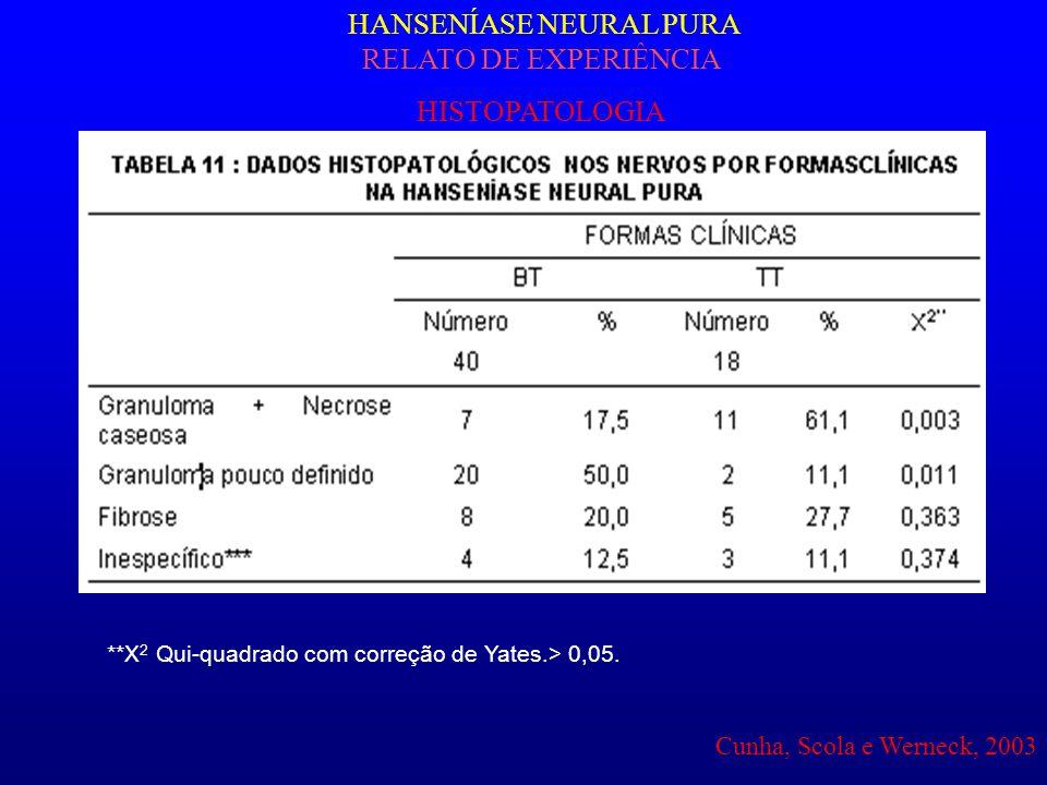 **Χ 2 Qui-quadrado com correção de Yates.> 0,05. HANSENÍASE NEURAL PURA RELATO DE EXPERIÊNCIA HISTOPATOLOGIA Cunha, Scola e Werneck, 2003