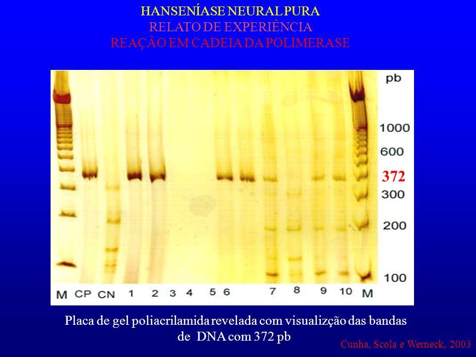 HANSENÍASE NEURAL PURA RELATO DE EXPERIÊNCIA REAÇÃO EM CADEIA DA POLIMERASE 372 Placa de gel poliacrilamida revelada com visualizção das bandas de DNA