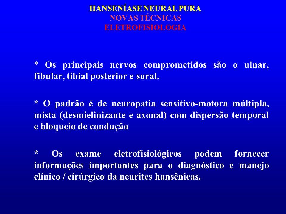 HANSENÍASE NEURAL PURA NOVAS TÉCNICAS ELETROFISIOLOGIA * Os principais nervos comprometidos são o ulnar, fibular, tibial posterior e sural. * O padrão
