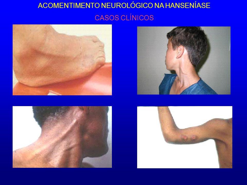 ACOMENTIMENTO NEUROLÓGICO NA HANSENÍASE CASOS CLÍNICOS