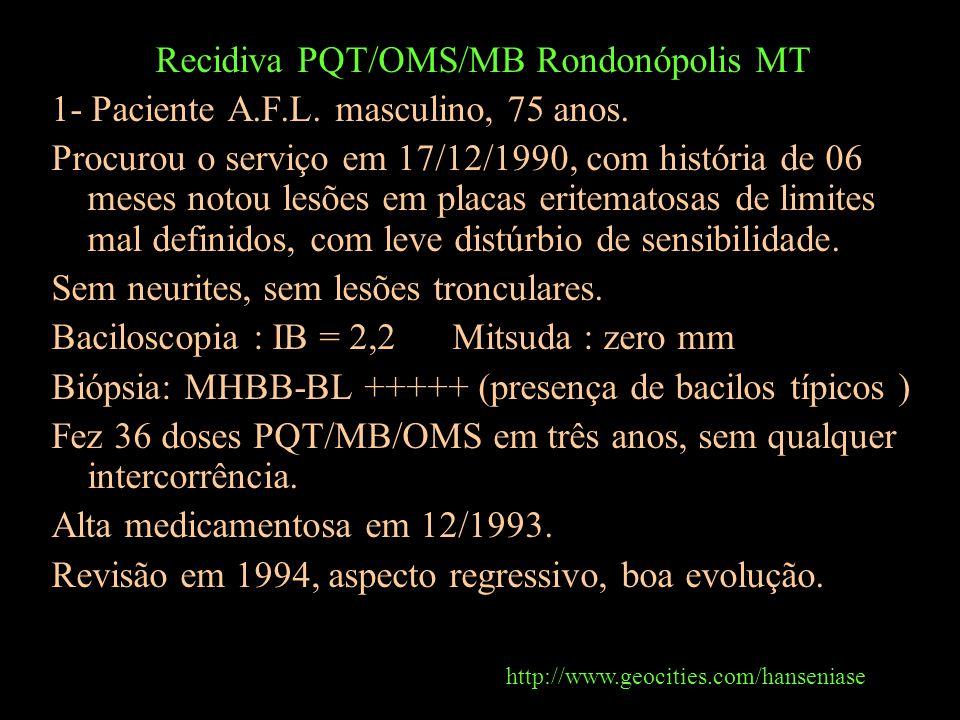 Recidiva PQT/OMS/MB Rondonópolis MT 1- Paciente A.F.L. masculino, 75 anos. Procurou o serviço em 17/12/1990, com história de 06 meses notou lesões em