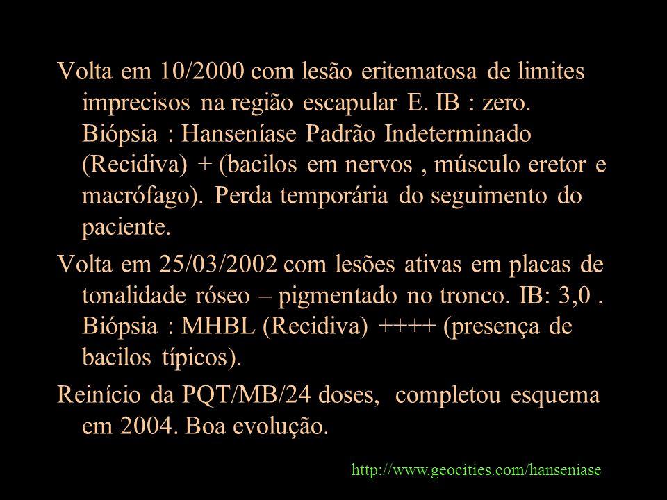 Volta em 10/2000 com lesão eritematosa de limites imprecisos na região escapular E. IB : zero. Biópsia : Hanseníase Padrão Indeterminado (Recidiva) +