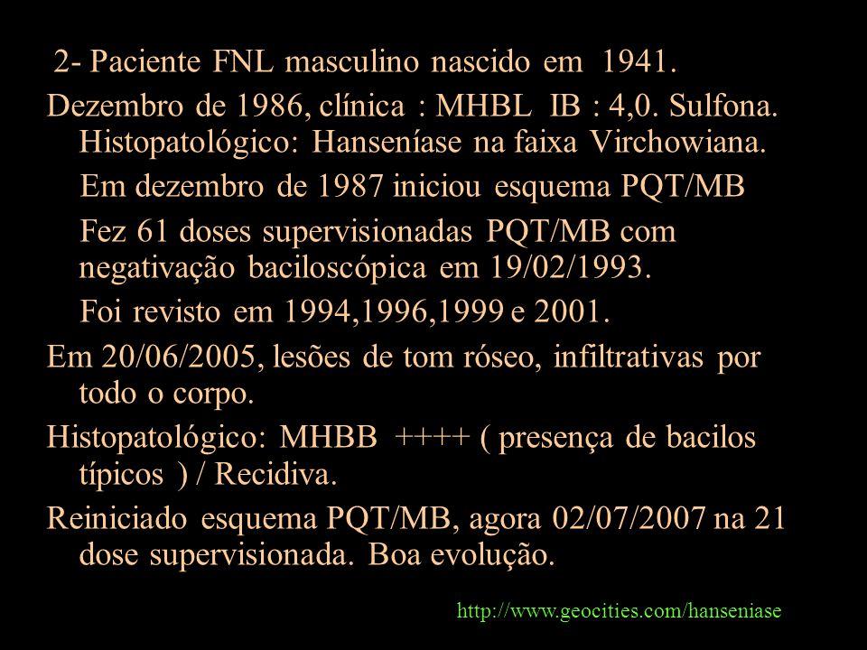 2- Paciente FNL masculino nascido em 1941. Dezembro de 1986, clínica : MHBL IB : 4,0. Sulfona. Histopatológico: Hanseníase na faixa Virchowiana. Em de