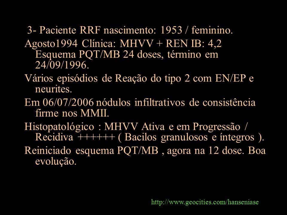 3- Paciente RRF nascimento: 1953 / feminino. Agosto1994 Clínica: MHVV + REN IB: 4,2 Esquema PQT/MB 24 doses, término em 24/09/1996. Vários episódios d