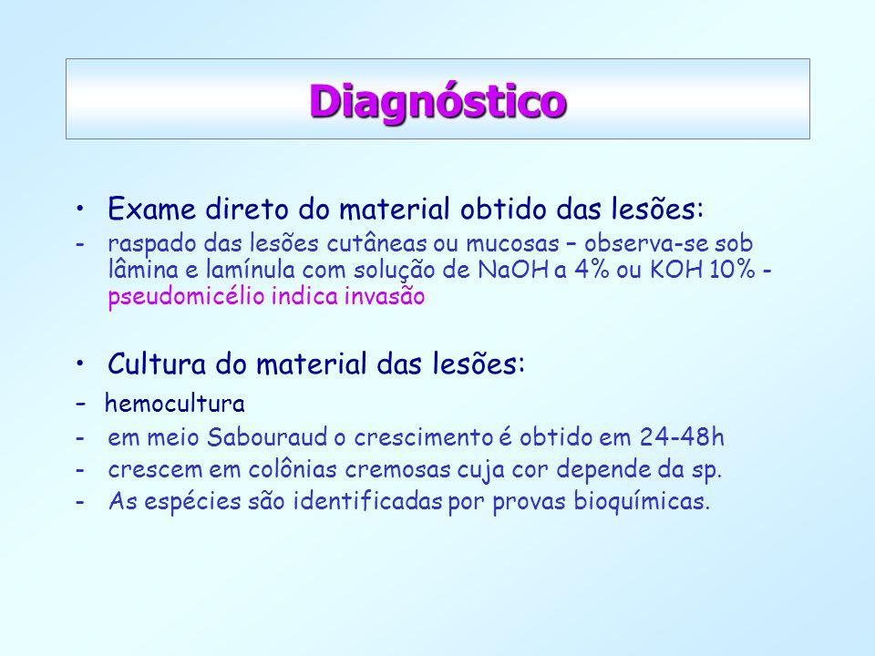 Diagnóstico Exame direto do material obtido das lesões: -raspado das lesões cutâneas ou mucosas – observa-se sob lâmina e lamínula com solução de NaOH