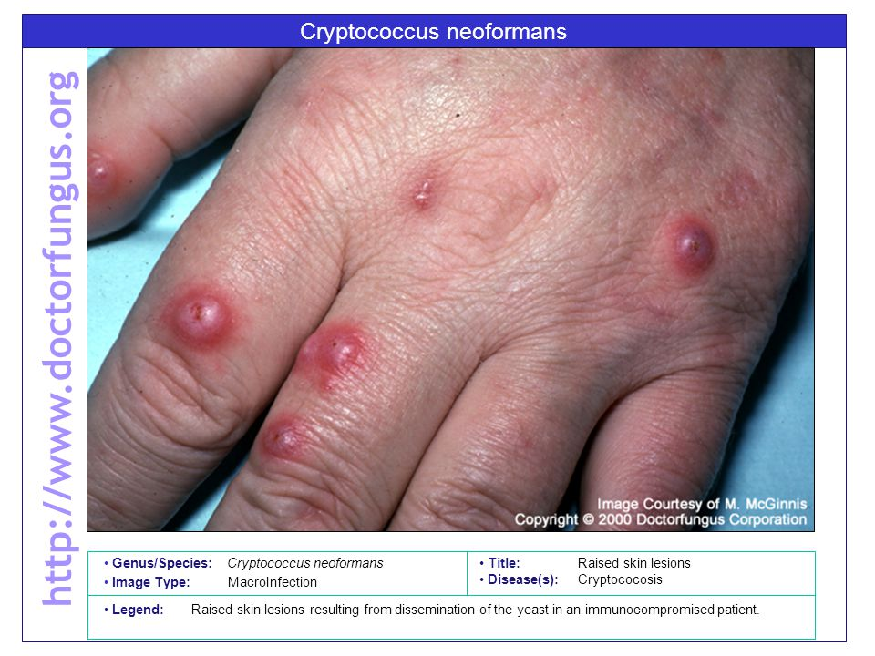 Cryptococcus neoformans Title: Raised skin lesions Disease(s): Cryptococosis Legend: Raised skin lesions resulting from dissemination of the yeast in