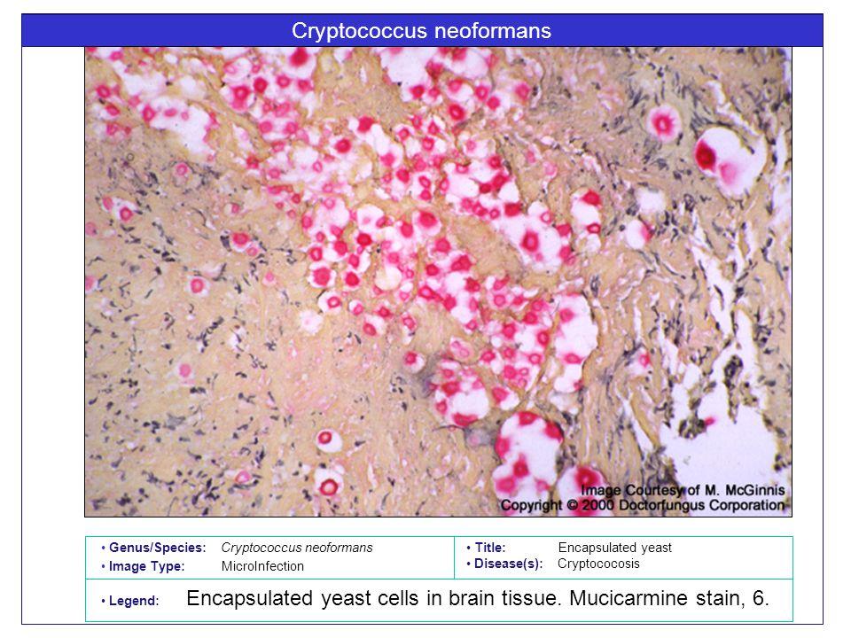 Cryptococcus neoformans Title: Encapsulated yeast Disease(s): Cryptococosis Legend: Encapsulated yeast cells in brain tissue.