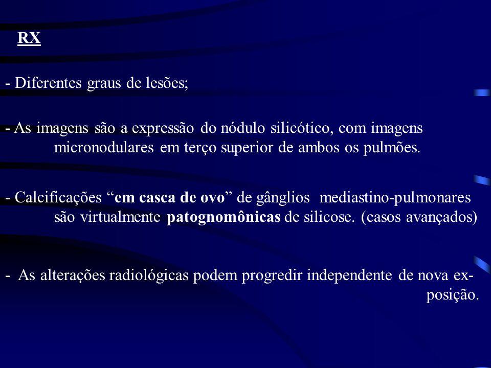 RX - Diferentes graus de lesões; - As imagens são a expressão do nódulo silicótico, com imagens micronodulares em terço superior de ambos os pulmões.