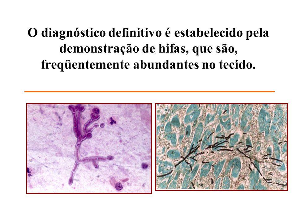 O diagnóstico definitivo é estabelecido pela demonstração de hifas, que são, freqüentemente abundantes no tecido.