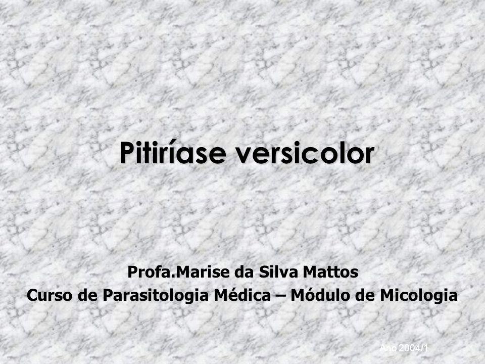 Ano 2004/1 Pitiríase versicolor Profa.Marise da Silva Mattos Curso de Parasitologia Médica – Módulo de Micologia