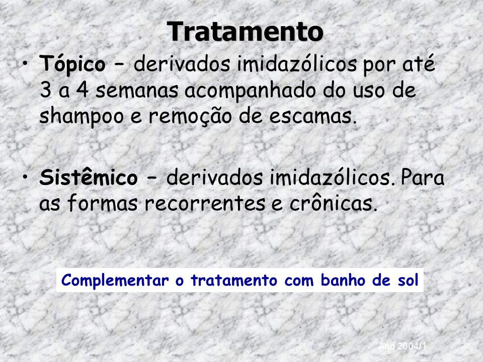 Ano 2004/1Tratamento Tópico – derivados imidazólicos por até 3 a 4 semanas acompanhado do uso de shampoo e remoção de escamas. Sistêmico – derivados i