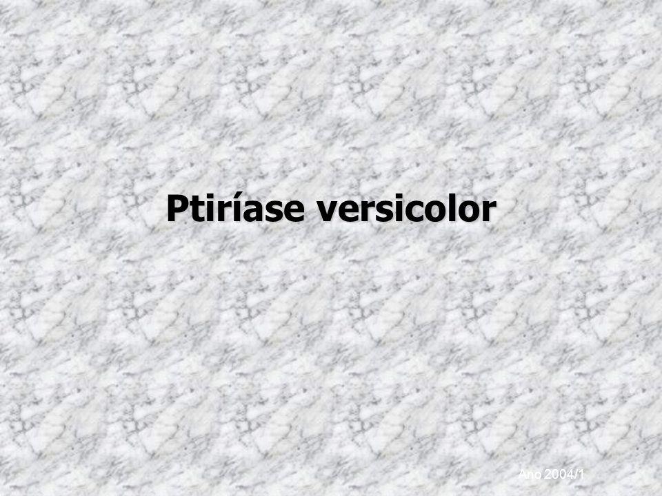 Ano 2004/1 Ptiríase versicolor