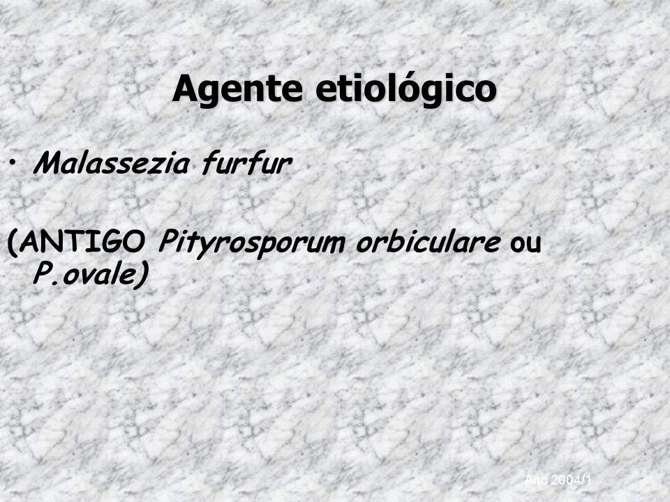 Ano 2004/1 Agente etiológico Malassezia furfur (ANTIGO Pityrosporum orbiculare ou P.ovale)