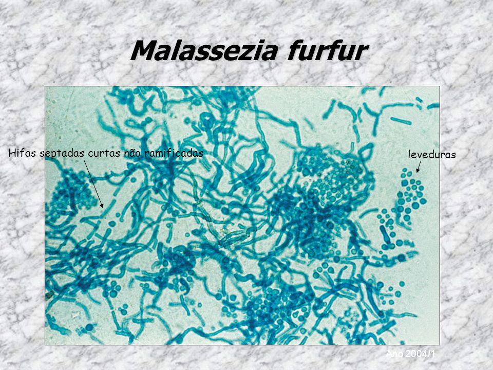 Ano 2004/1 Malassezia furfur leveduras Hifas septadas curtas não ramificadas