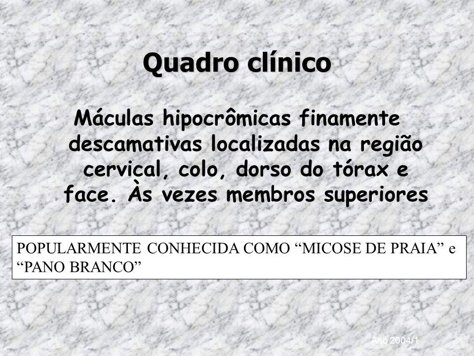 Ano 2004/1 Quadro clínico Máculas hipocrômicas finamente descamativas localizadas na região cervical, colo, dorso do tórax e face. Às vezes membros su
