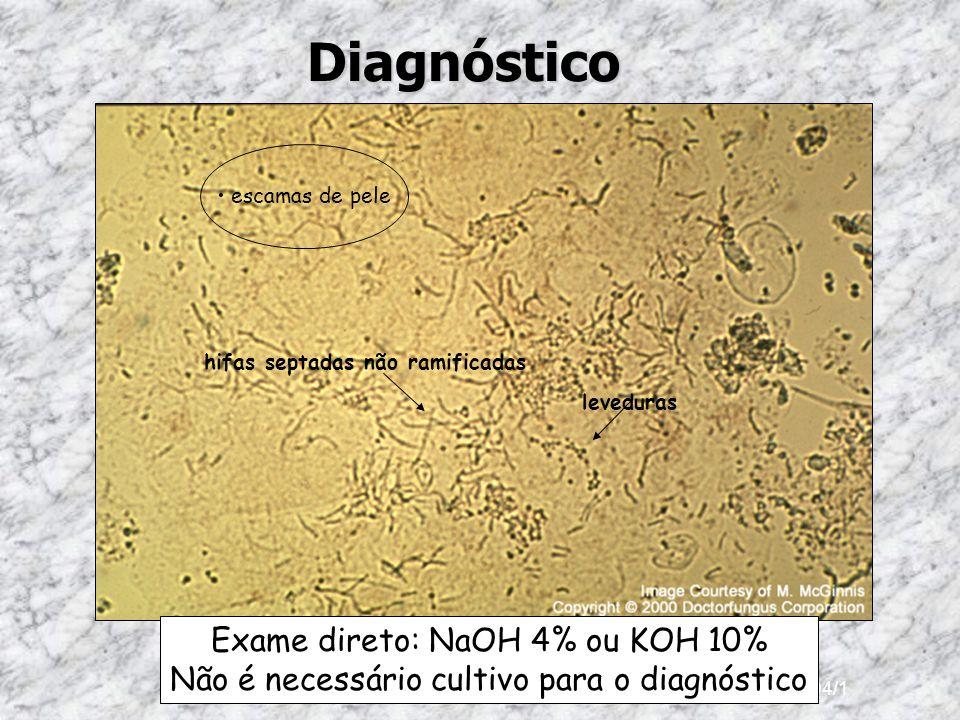 Ano 2004/1Diagnóstico hifas septadas não ramificadas escamas de pele leveduras Exame direto: NaOH 4% ou KOH 10% Não é necessário cultivo para o diagnó