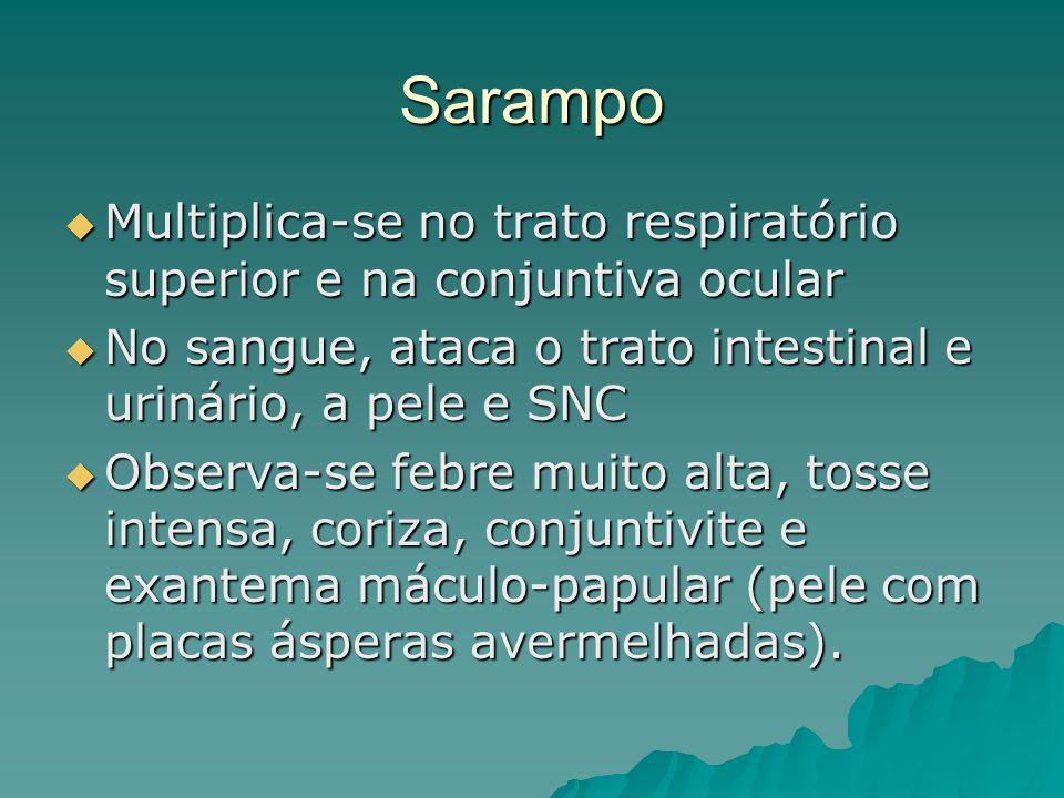 Sarampo Multiplica-se no trato respiratório superior e na conjuntiva ocular Multiplica-se no trato respiratório superior e na conjuntiva ocular No san
