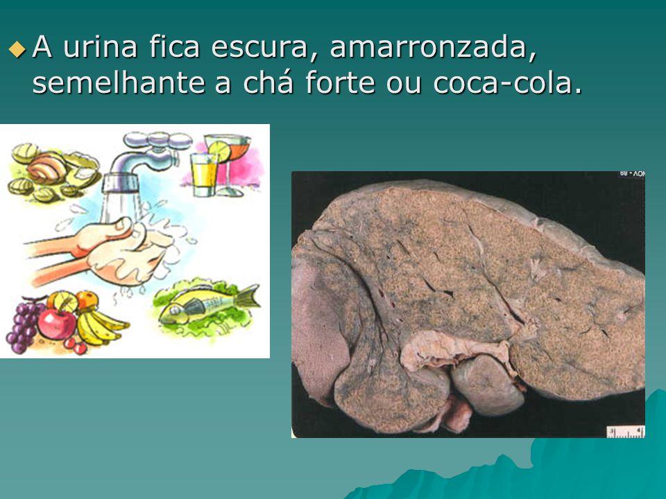 A urina fica escura, amarronzada, semelhante a chá forte ou coca-cola. A urina fica escura, amarronzada, semelhante a chá forte ou coca-cola.