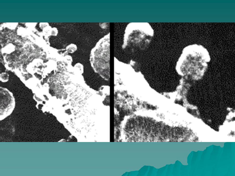 HPV Vírus que infecta células da pele e das mucosas genitais tais como vulva, vagina, colo de útero, e pênis Vírus que infecta células da pele e das mucosas genitais tais como vulva, vagina, colo de útero, e pênis Alguns subtipos de alto risco estão relacionados a tumores malignos Alguns subtipos de alto risco estão relacionados a tumores malignos São encontrados na maioria das verrugas genitais e papilomas laríngeos São encontrados na maioria das verrugas genitais e papilomas laríngeos Os vírus de alto risco estão associados a lesões pré-cancerígenas.