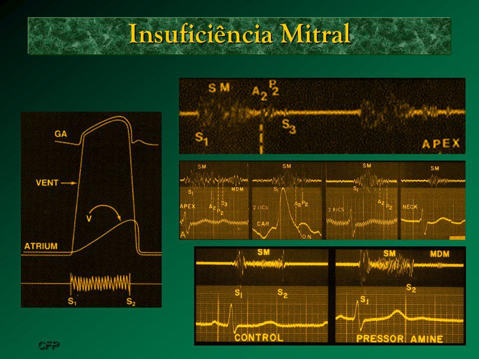 CFPCFP Insuficiência Mitral