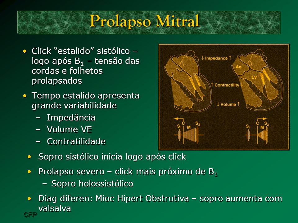 CFPCFP Prolapso Mitral Click estalido sistólico – logo após B 1 – tensão das cordas e folhetos prolapsadosClick estalido sistólico – logo após B 1 – t