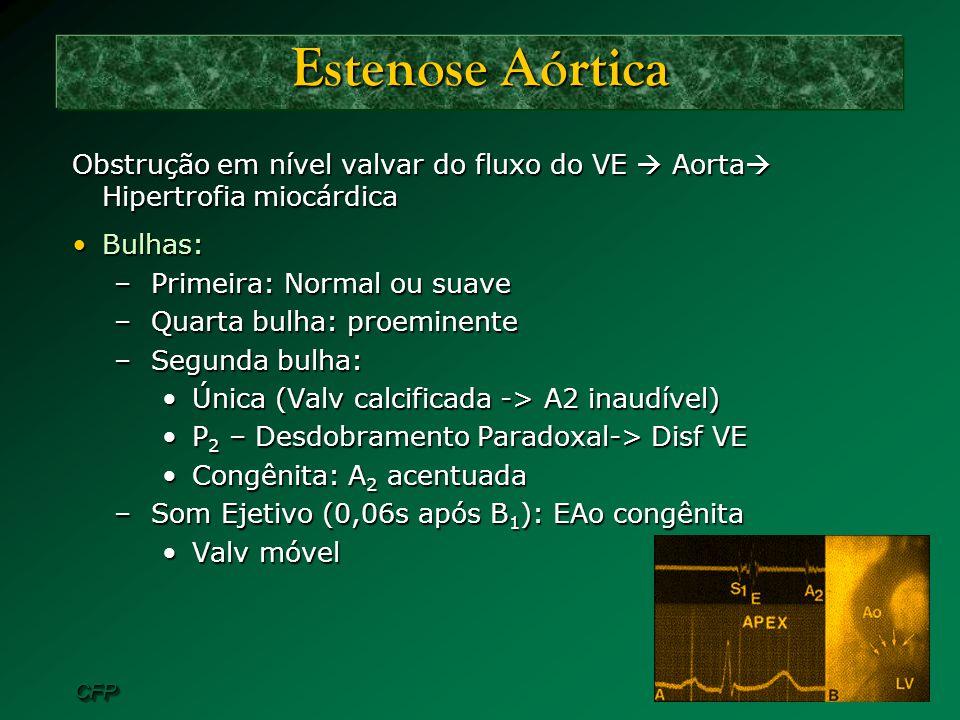 CFPCFP Estenose Aórtica Obstrução em nível valvar do fluxo do VE Aorta Hipertrofia miocárdica Bulhas:Bulhas: –Primeira: Normal ou suave –Quarta bulha: