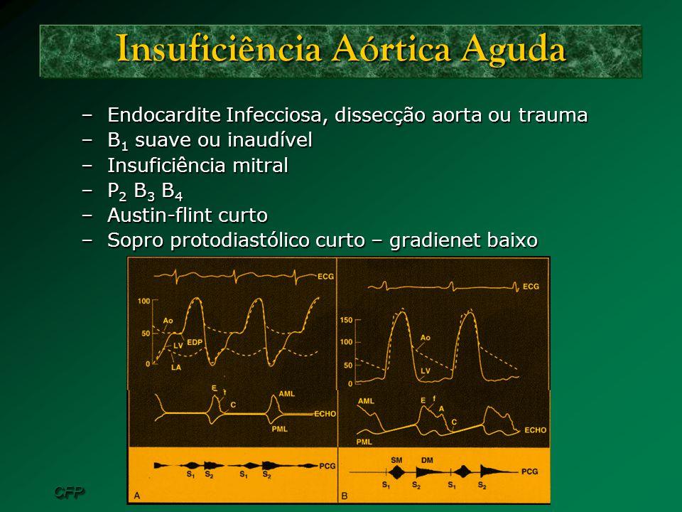CFPCFP Insuficiência Aórtica Aguda –Endocardite Infecciosa, dissecção aorta ou trauma –B 1 suave ou inaudível –Insuficiência mitral –P 2 B 3 B 4 –Aust