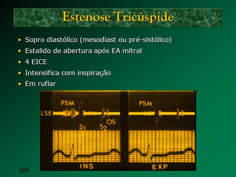 CFPCFP Estenose Tricúspide Sopro diastólico (mesodiast ou pré-sistólico)Sopro diastólico (mesodiast ou pré-sistólico) Estalido de abertura após EA mit