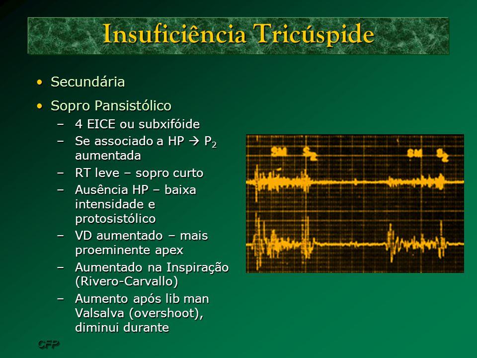 CFPCFP Insuficiência Tricúspide SecundáriaSecundária Sopro PansistólicoSopro Pansistólico –4 EICE ou subxifóide –Se associado a HP P 2 aumentada –RT l