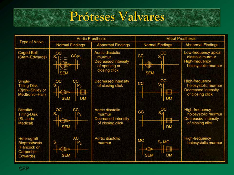 CFPCFP Próteses Valvares