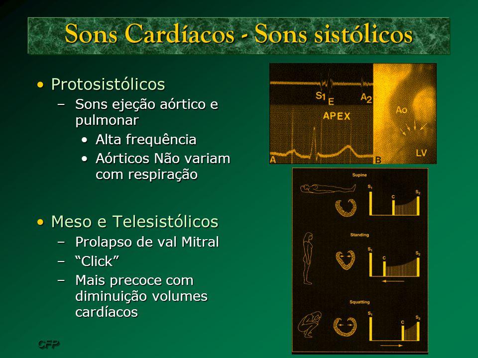 CFPCFP Sons Cardíacos - Sons sistólicos ProtosistólicosProtosistólicos –Sons ejeção aórtico e pulmonar Alta frequênciaAlta frequência Aórticos Não var
