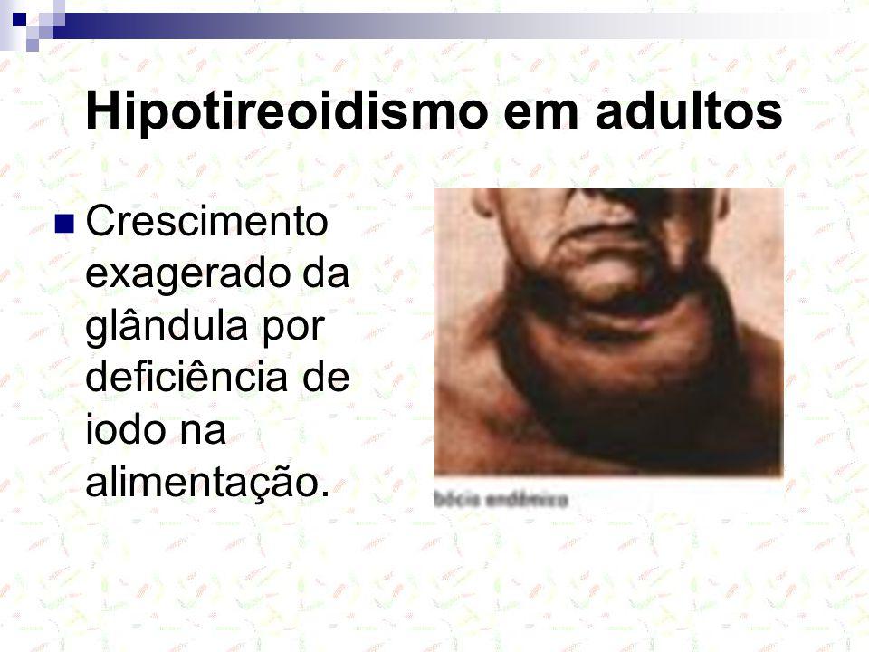 Hipotireoidismo em adultos Crescimento exagerado da glândula por deficiência de iodo na alimentação.