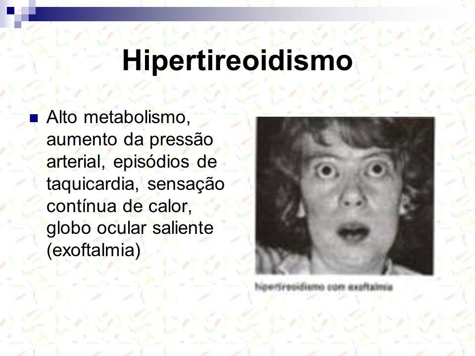 Hipertireoidismo Alto metabolismo, aumento da pressão arterial, episódios de taquicardia, sensação contínua de calor, globo ocular saliente (exoftalmia)