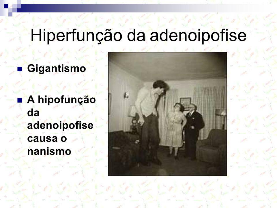 Hiperfunção da adenoipofise Gigantismo A hipofunção da adenoipofise causa o nanismo
