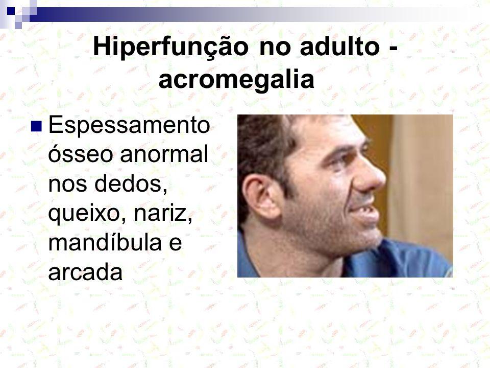 Hiperfunção no adulto - acromegalia Espessamento ósseo anormal nos dedos, queixo, nariz, mandíbula e arcada