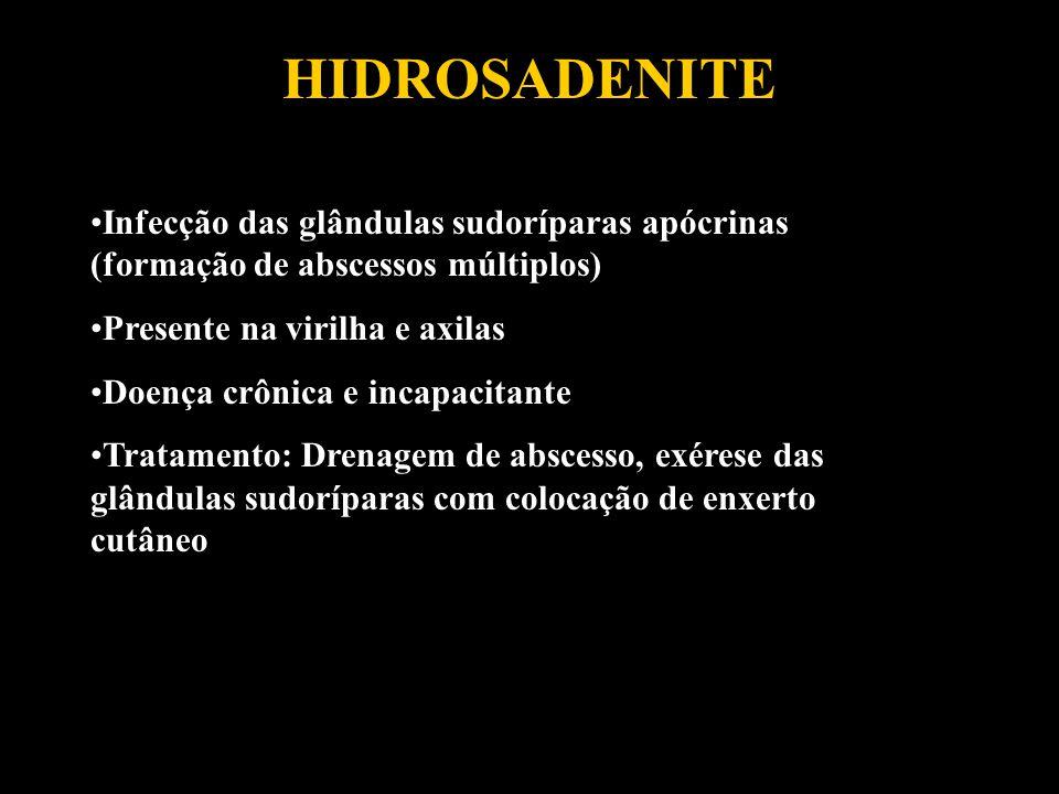 HIDROSADENITE Infecção das glândulas sudoríparas apócrinas (formação de abscessos múltiplos) Presente na virilha e axilas Doença crônica e incapacitan