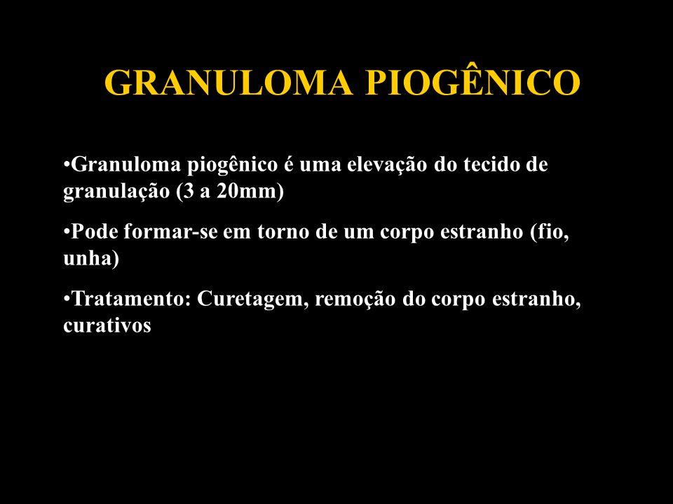 GRANULOMA PIOGÊNICO Granuloma piogênico é uma elevação do tecido de granulação (3 a 20mm) Pode formar-se em torno de um corpo estranho (fio, unha) Tra