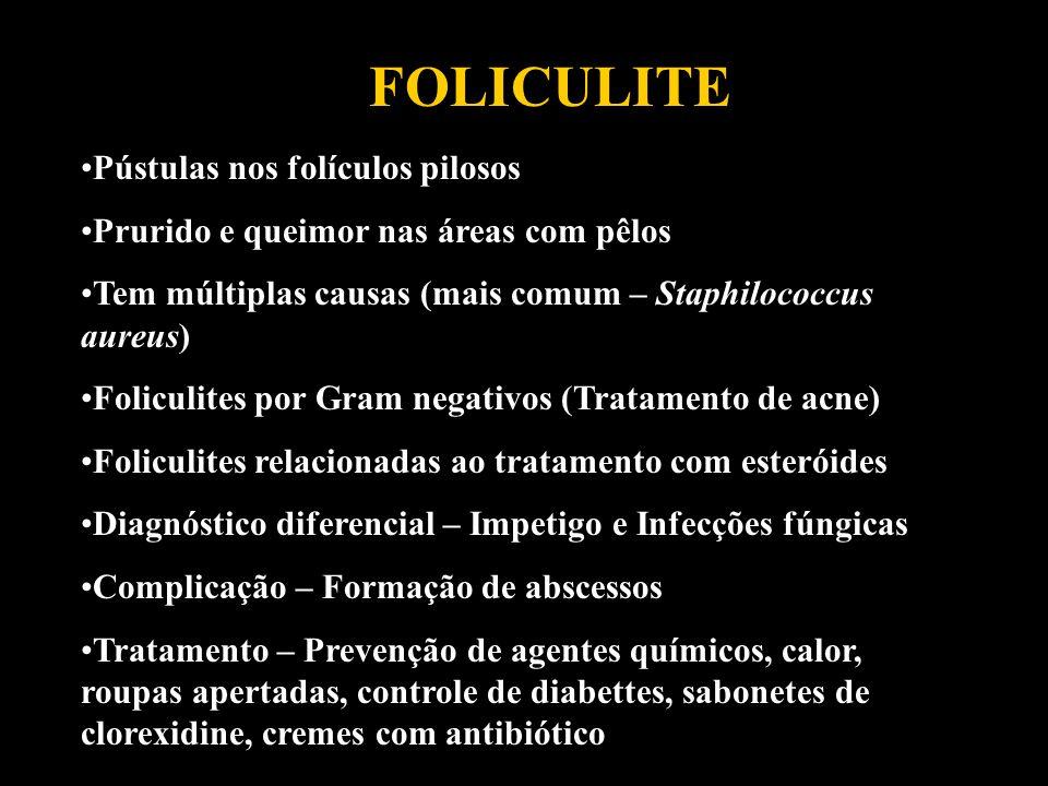 FOLICULITE Pústulas nos folículos pilosos Prurido e queimor nas áreas com pêlos Tem múltiplas causas (mais comum – Staphilococcus aureus) Foliculites