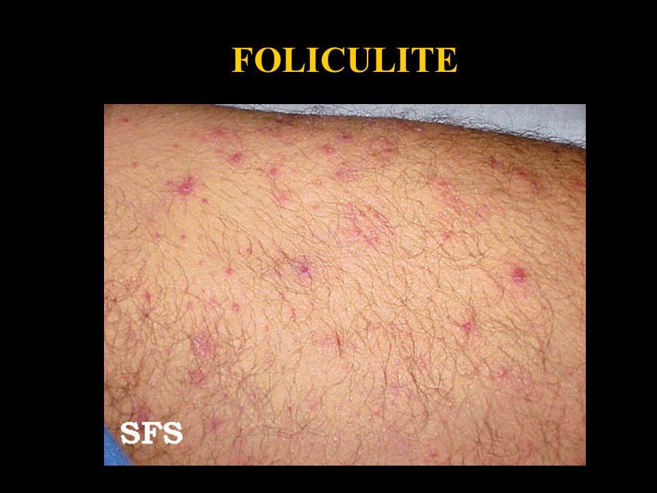 Folliculitis4 FOLICULITE
