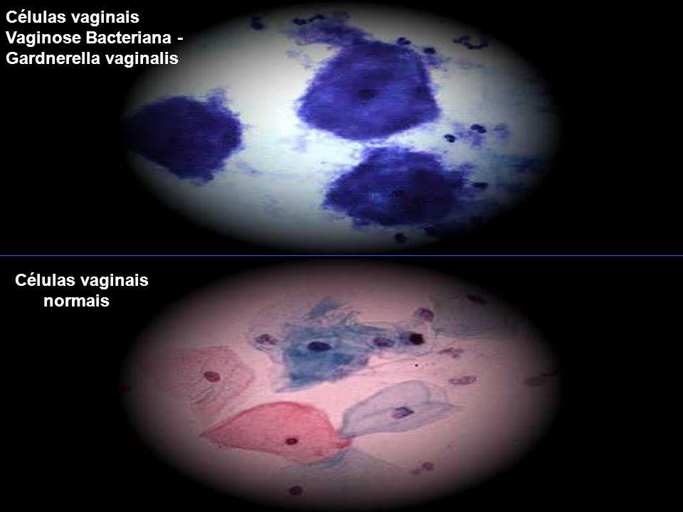 Células vaginais Vaginose Bacteriana - Gardnerella vaginalis Células vaginais normais