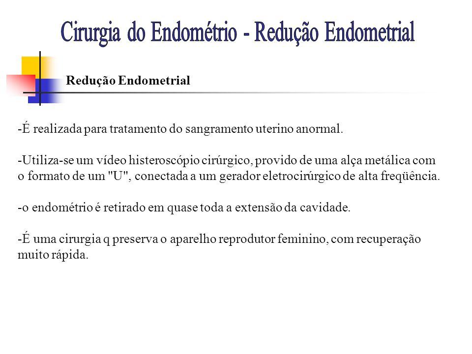 -É realizada para tratamento do sangramento uterino anormal. -Utiliza-se um vídeo histeroscópio cirúrgico, provido de uma alça metálica com o formato