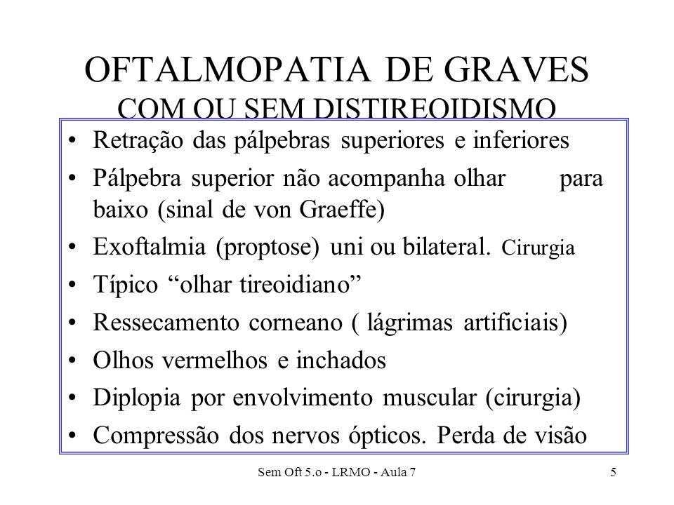 Sem Oft 5.o - LRMO - Aula 75 OFTALMOPATIA DE GRAVES COM OU SEM DISTIREOIDISMO Retração das pálpebras superiores e inferiores Pálpebra superior não aco