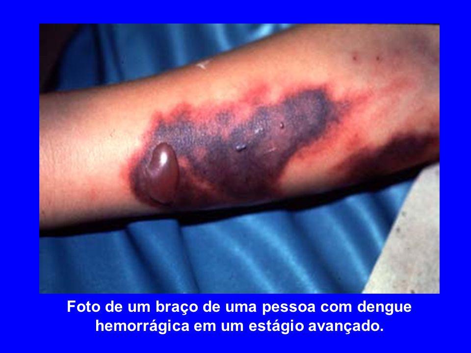 Foto de um braço de uma pessoa com dengue hemorrágica em um estágio avançado.