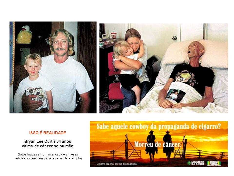 ISSO É REALIDADE Bryan Lee Curtis 34 anos vítima de câncer no pulmão (fotos tiradas em um intervalo de 2 mêses cedidas por sua família para servir de