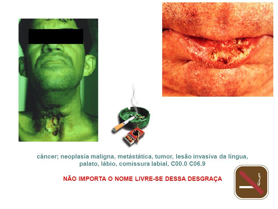 câncer; neoplasia maligna, metástática, tumor, lesão invasiva da língua, palato, lábio, comissura labial, C00.0 C06.9 NÃO IMPORTA O NOME LIVRE-SE DESS